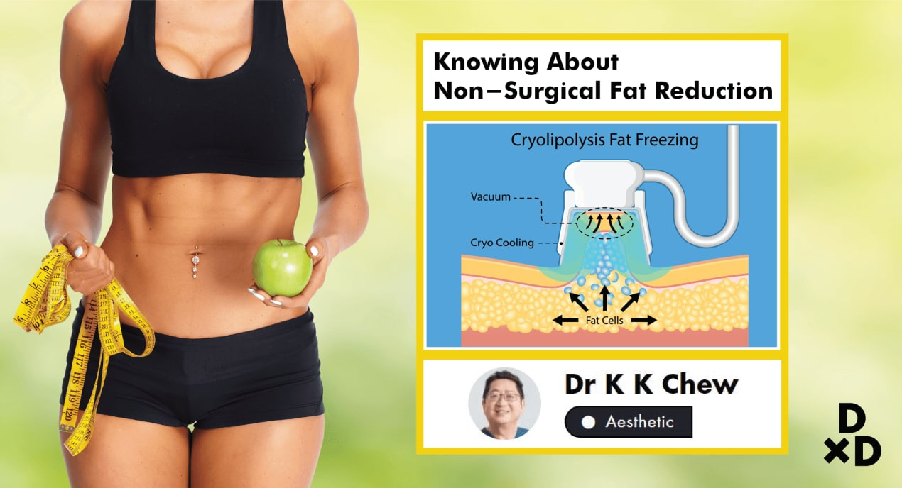 The Essential Guide To Non-surgical Fat Reduction In Singapore (2020) undefined