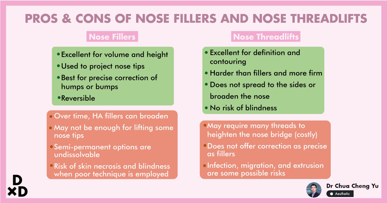 The Complete Guide to Nose Fillers and Nose Threadlifts in Singapore (2020) undefined