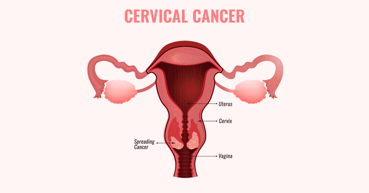 The Ultimate Guide to Cervical Cancer Prevention in Singapore (2020) undefined