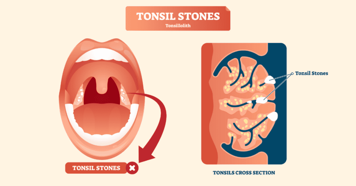 Tonsil Stones: ENT Doctor Shares 4 Ways To Get Rid of These Stinky Masses undefined