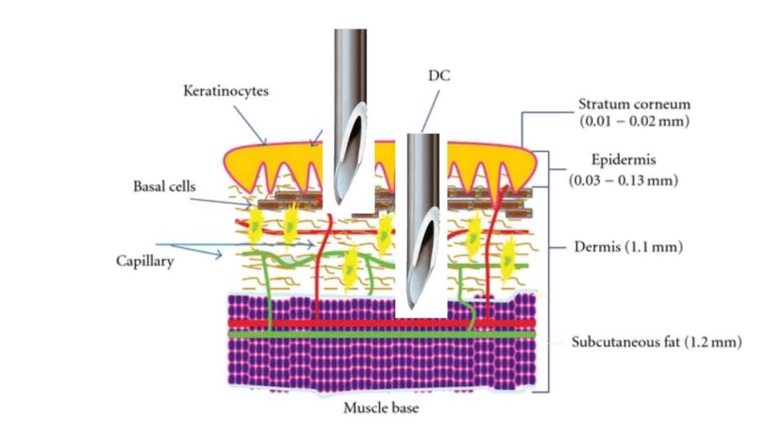 diagram-injection-manual-vs-injector-gun