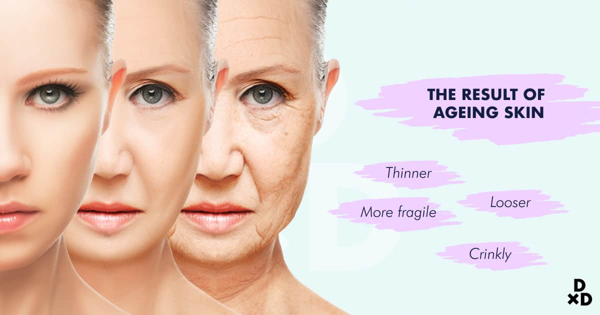 result skin ageing
