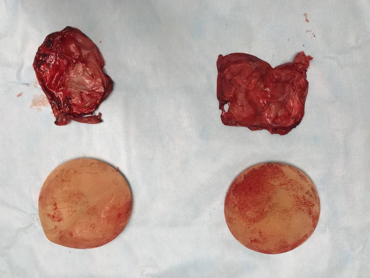 Breast capsule removal (capsulectomy) and removal of breast implants