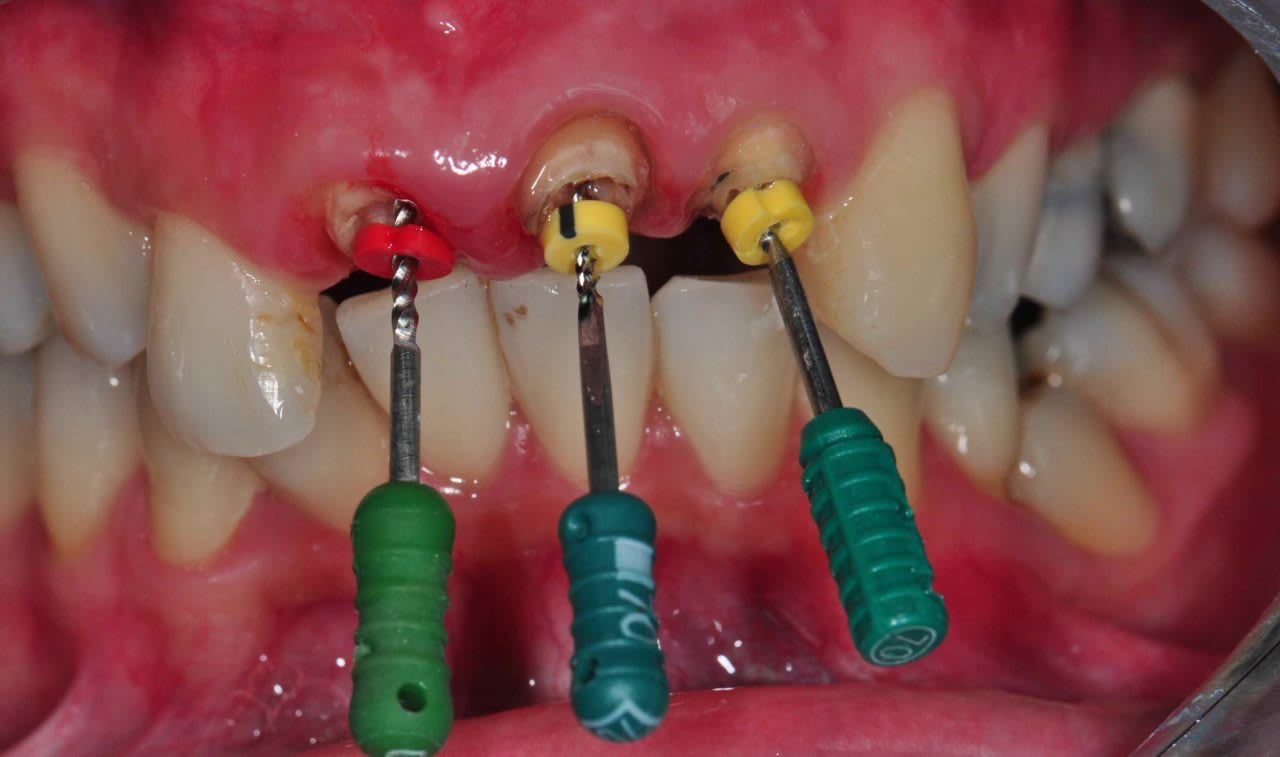 Root Canal Treatment And 5 Common Misconceptions