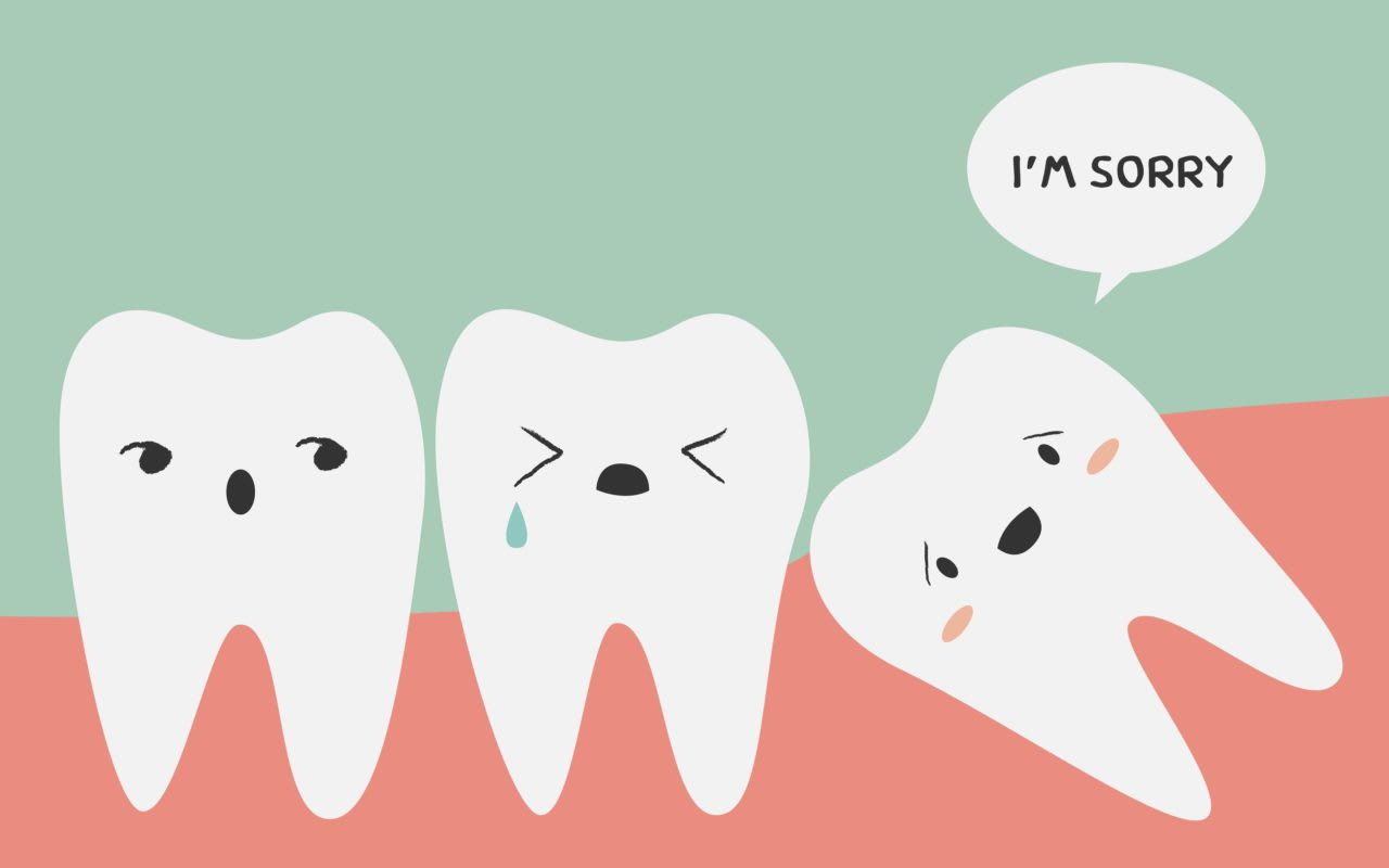 Guide To Wisdom Tooth Extraction Costs In Singapore (2019)