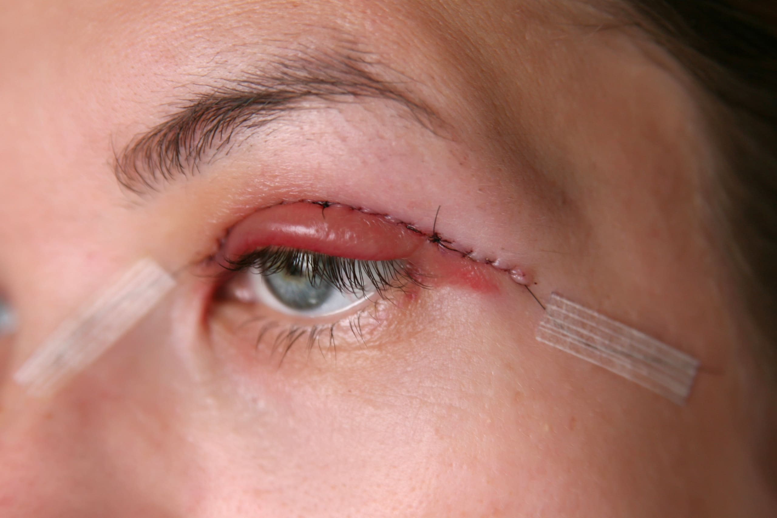Suture Method vs Cutting Method For Double Eyelid Surgery