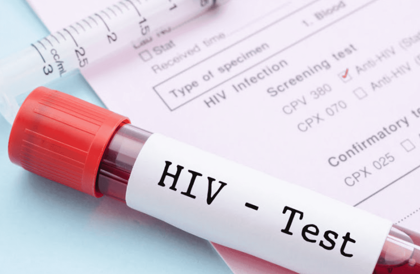Your Complete Guide To Getting A HIV Test In Singapore (2019)