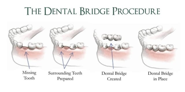 dental bridge singapore