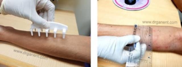 skin prick test Singapore