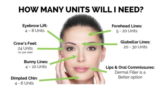 botox units singapore