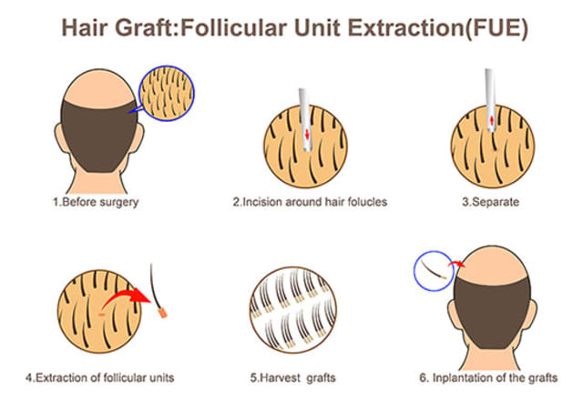 Hair graft: Follicular unit extraction (FUE)