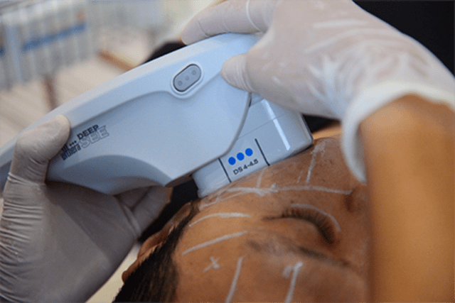 Ultherapy in Singapore