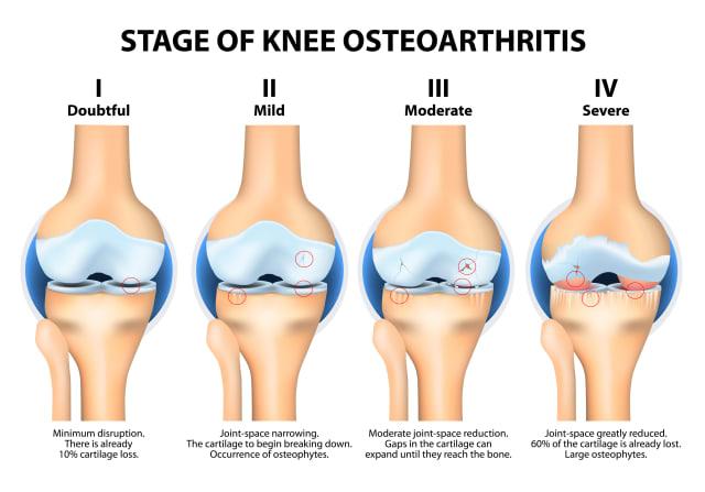 severe arthritis in Singapore