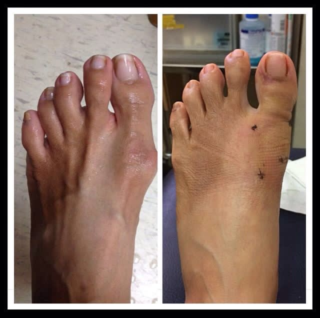 Recovery from Bunion surgery in Singapore