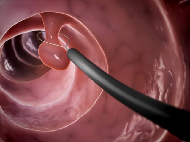 colonoscopy screening