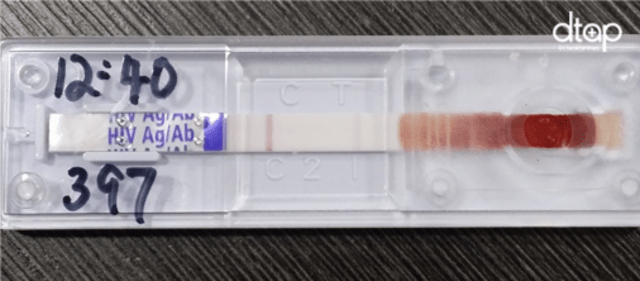 HIV test in Singapore