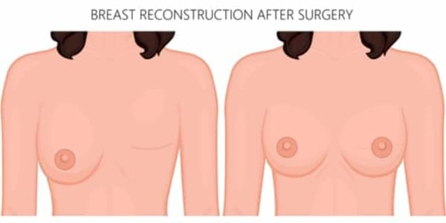 breast reconstruction singapore