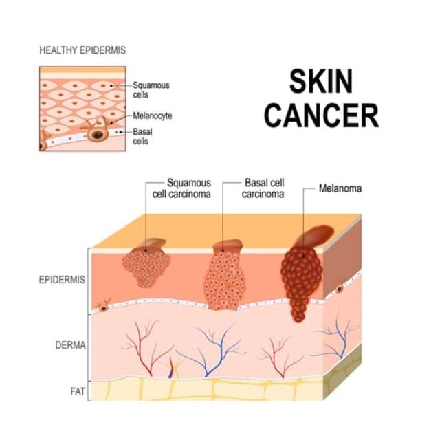 skin cancer singapore