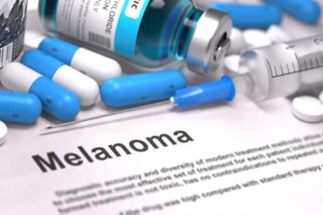melanoma skin cancer singapore