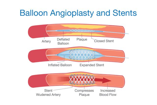 angioplasty singapore
