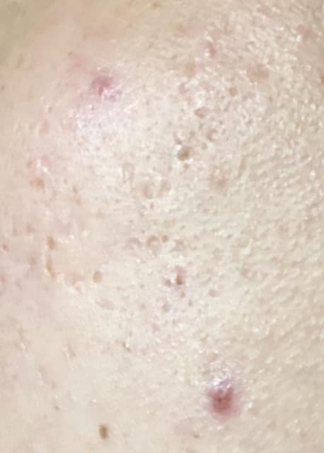 How much recovery can I expect for my acne scars? (photos)