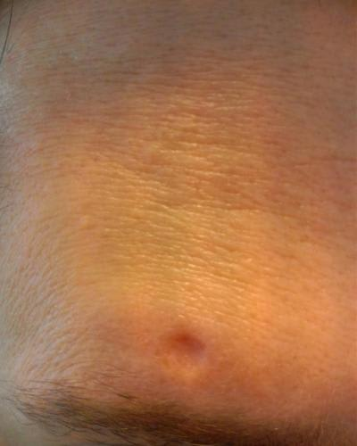 Is subcision or excision more effective for chicken pox scars? (photo)