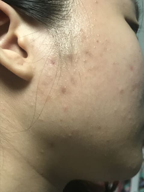 Are pus and blood-filled pimples due to toxins accumulated in my body from sleeping late? (photos)