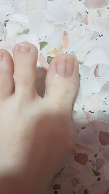 How do I get rid of a brown line on my toe nail? (photo)