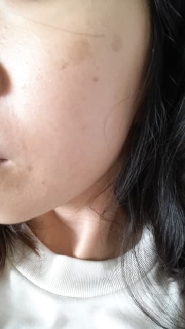 What's the best laser to remove pigmentation from sun exposure? (photo)