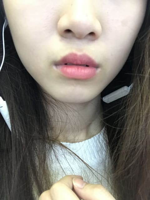 How can I tell if my chubby cheeks are caused by large jaw muscles or fats? (photos)