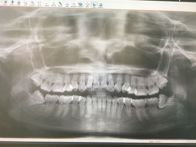 When is it absolutely necessary to remove my wisdom tooth if I'm afraid of surgery? (photo)