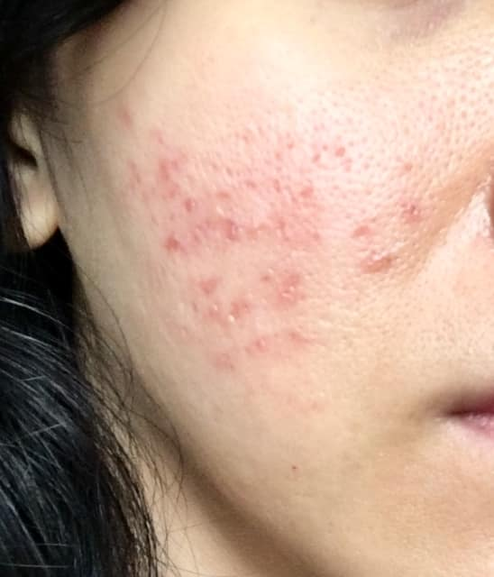 How long will the redness after fractional CO2 laser take to go away? (photo)