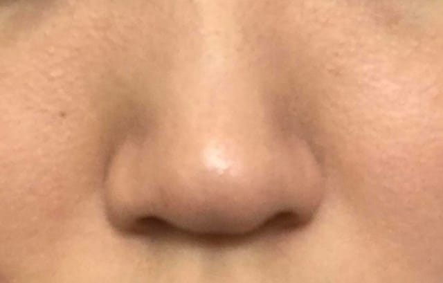How can I get rid of a dent on my nose tip? (photo)