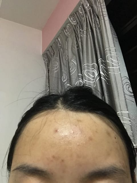 What is the best treatment for forehead acne? (photo)
