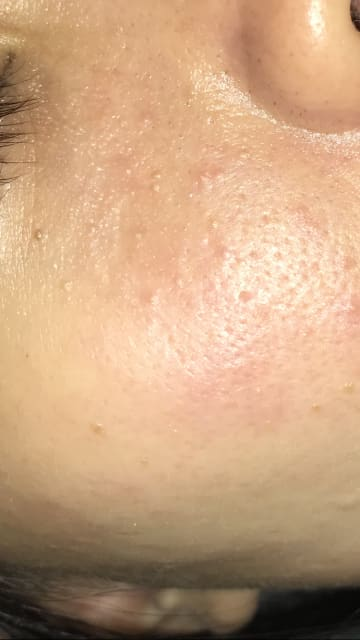 How do I get rid of redness and bumps on my face? (photo)