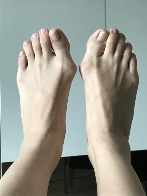 Is minimally invasive bunion surgery suitable for my severe bunions? (photo)