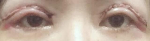 What should I do next if I still have droopy eyelids after an upper eyelid blepharoplasty? (photo)