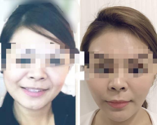 Thread lift (Face) + Filler (Chin) | Dr Kelvin Chua Review