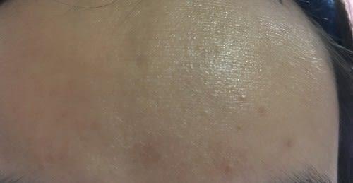 How can I remove syringoma/milia under my eyes?