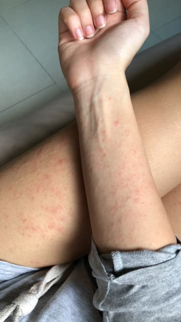 What should I do next if I have an outbreak of rash all over my body? (photo)