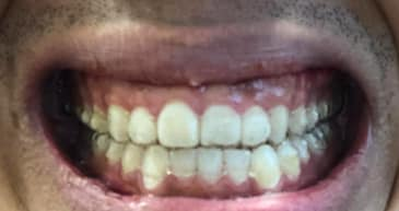 What cosmetic dentistry treatment is the best for correcting small teeth? (photo)