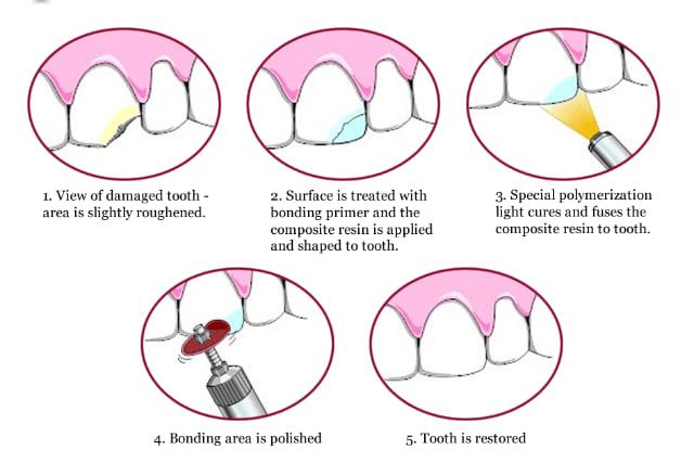 dental bonding singapore