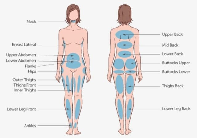 Liposuction treatment areas in Singapore
