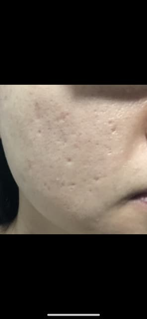 What is the best acne scar treatment for pitted scars? (photo)
