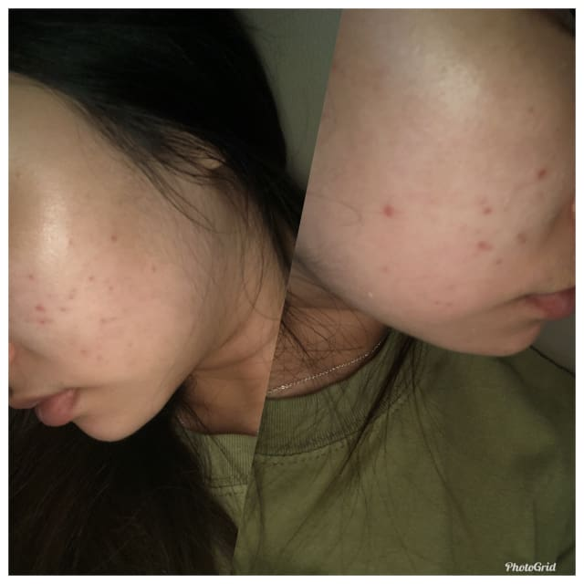 What could be the cause for minimal improvement after laser treatment for red acne marks? (photo)