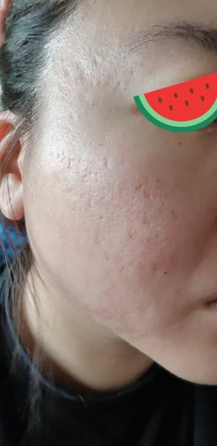 How can I get the best results for my acne scars and large pores? (photo)