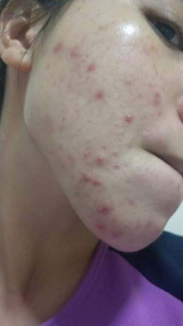 How can I prevent and treat cystic acne on my face? (photo)