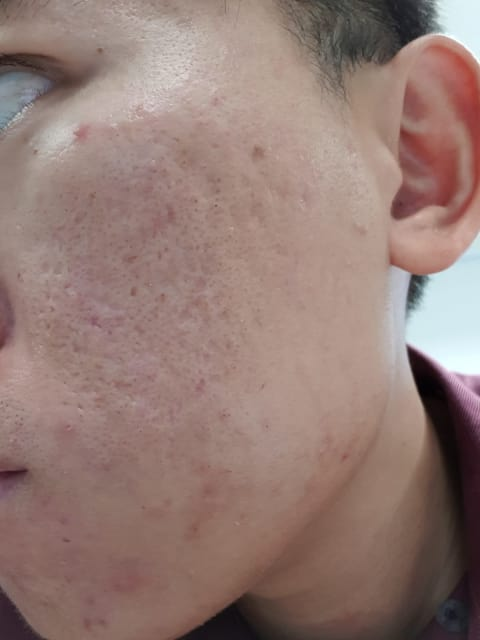 What is the best treatment for acne scars if I still have acne outbreaks? (photo)