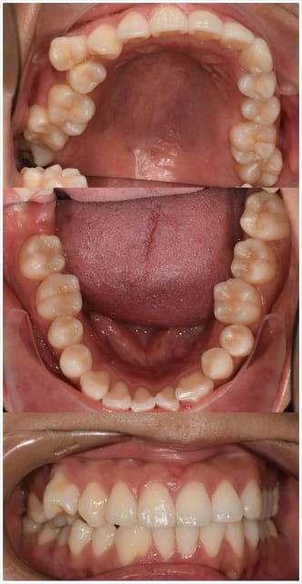How do dentists formulate the best treatment plan for crooked and protruding teeth? (photo)