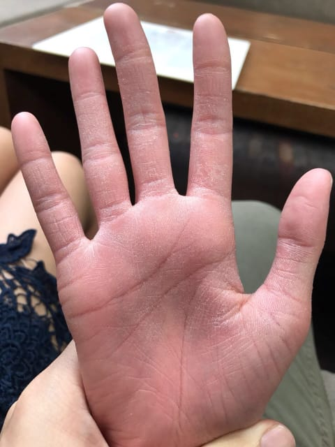 How can I treat extremely dry skin on my hands and feet? (photo)